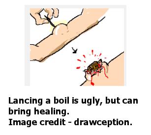 LancingTheBoil-drawceptioncredit-postedMHProNews-